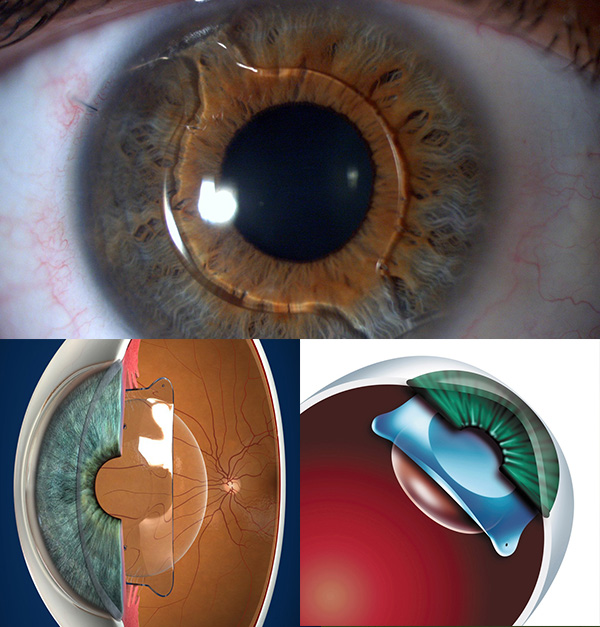 implante-de-lente-intraocular