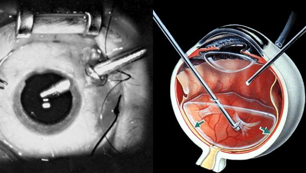 vitrectomia